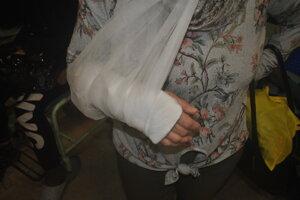 Niektorí pacienti odchádzali po ošetrení so sadrou, iní smerovali rovno na operáciu.