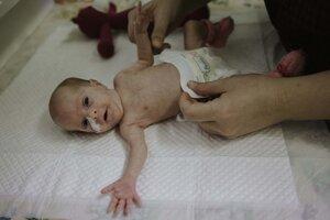 Špeciálne vyvinuté plienky pre predčasne narodené deti.