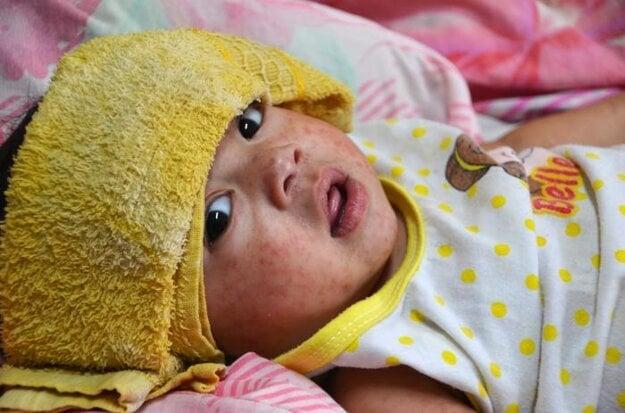 Dieťa s osýpkami hospitalizované v Manile. V roku 2014 zažili Filipíny veľkú epidémiu osýpok po tom, čo sa krajinou prehnal supertajfún Yolanda.