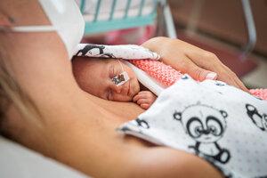 Predčasne narodeným deťom pomáha dozrievať kontakt koža na kožu.