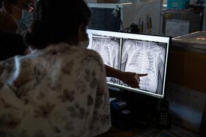 Lekárky kontrolujú RTG snímku bábätka.
