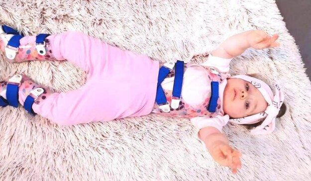 Aj keď malá Eliška len leží, musí mať korzet a na nožičkách ortézy, je veľká bojovníčka.