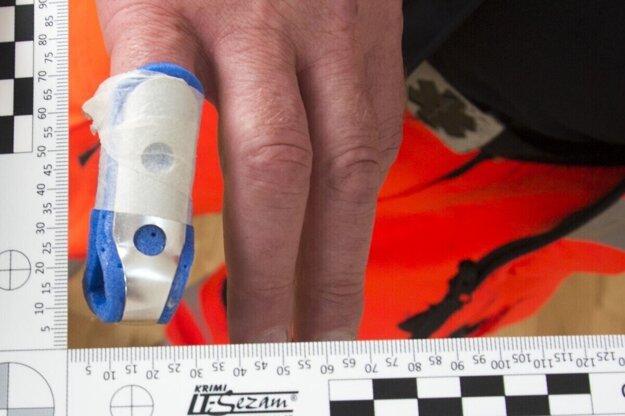 Zranený prst záchranára.