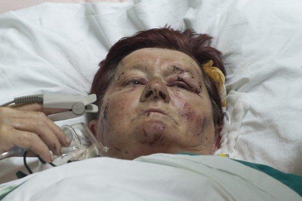 Zranená turistka. Helena z okresu Trebišov, ktorá je hospitalizovaná v Centrálnej klinike v srbskom meste Niš.