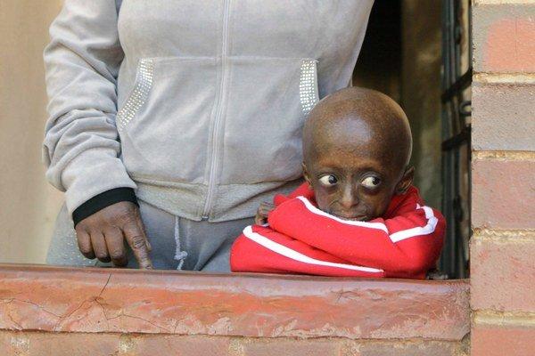 Na snímke z 24. augusta 2011 12-ročné juhoafrické dievčatko Ontlametse Phalatse, ktoré trpí chorobou progéria. Postihnuté deti starnú niekoľkokrát rýchlejšie ako normálne deti a nezvyknú sa dožívať oveľa viac rokov ako má táto jediná africká nositeľ