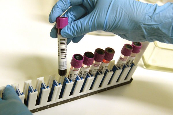 Čo znamenajú hodnoty a výsledky vyšetrenia krvi?