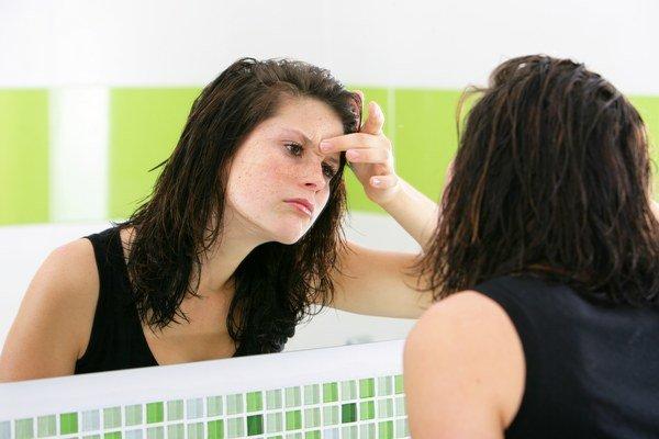 Ochladenie robí problémy najmä ľuďom so svetlejšou pleťou.