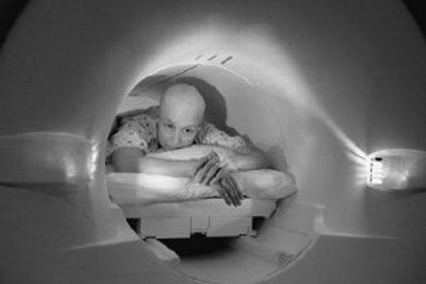 Pre úspešnosť liečby rakoviny je pre človeka dôležitá podpora okolia, jeho psychické dispozície a dobrá informácia o chorobe zo strany onkológa. ILUSTRAČNÉ