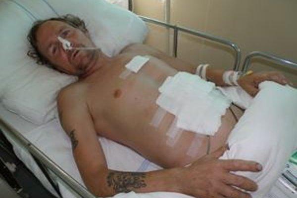 Peter sa podľa polície bude zo zranení liečiť štyri týždne.