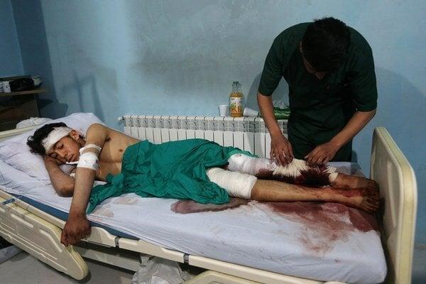Dvadsaťdvaročný povstalec mal šťastie. Napriek vážnym zraneniam nôh prežil.