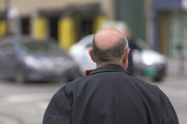 Kmeňové bunky by mohli pomôcť vyliečiť alopéciu aj plešatosť.