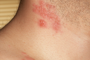 Pásov opar sa prejavuje ako pľuzgieriky na koži. Pacienti prirovnávajú jeho bolesť k páleniu či brneniu. Ak sa kože s pásovým oparom dotkne len jemný vánok, môžete cítiť bodavú bolesť.
