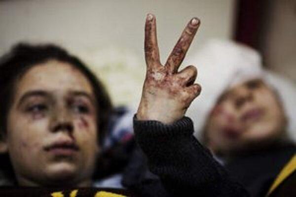 Zranené deti po bombardovaní mesta Idlib.