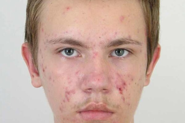Nezvestný Peter Kováč z Brezovej pod Bradlom, po ktorom pátra polícia.