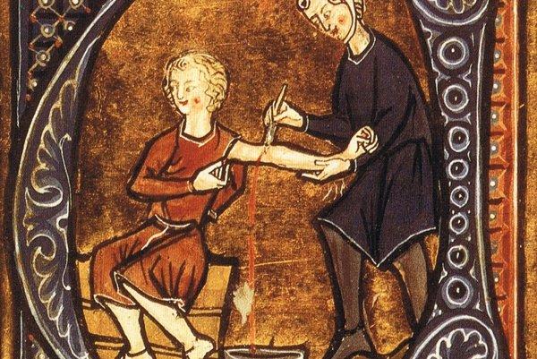 Obrázok z 13. storočia ako lekár púšťa pacientovi žilou.