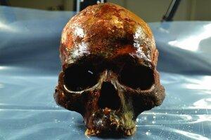 lebka v štúdii so zachovanou tvárovou časťou.