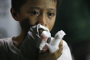 Filipínsky chlapec, ktorého zranila zábavná pyrotechnika.