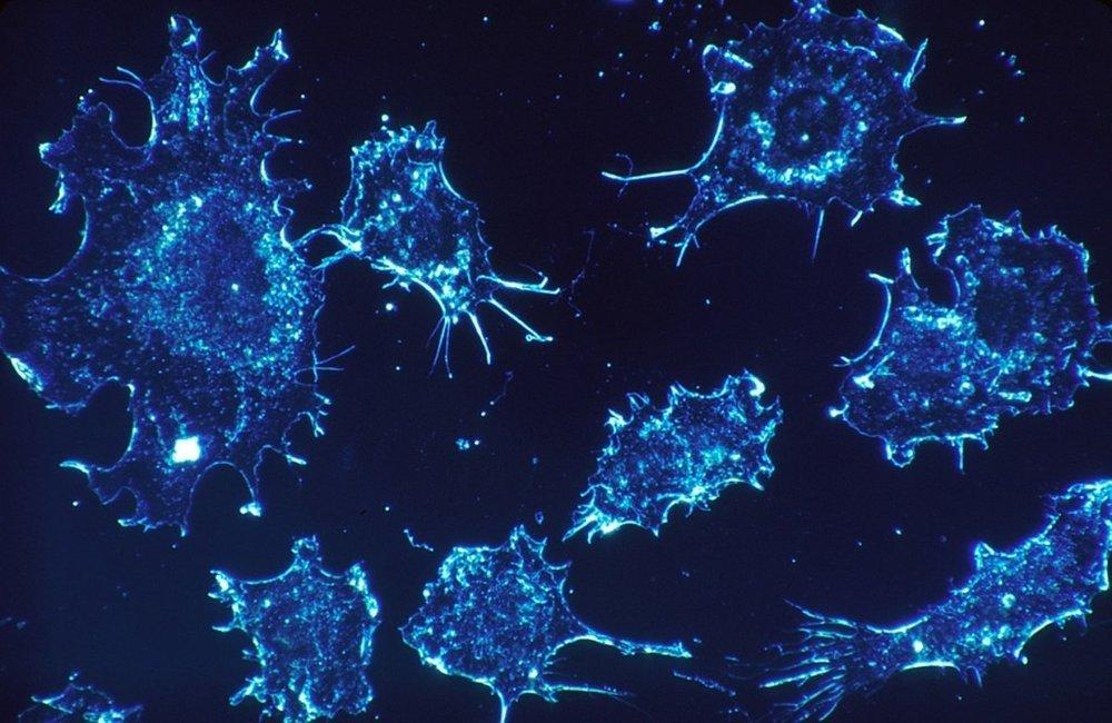 Riziko vzniku rakoviny je pri radóne významné.