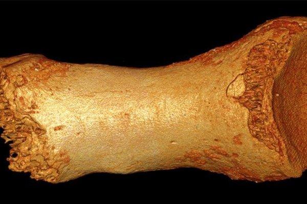 Neandertálska kosť z nohy.