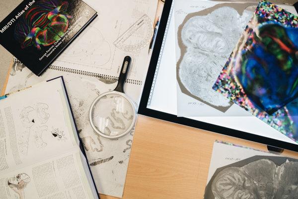 Novú oblasť objavili pri vytváraní novej mapy mozgu.