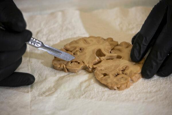 Profesor patológie Peter Nelson skúma rez mozgu a pátra po nezvyčajných zhlukoch bilekovín.