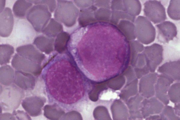 Nová liečba by mohla zabrať v boji s rakovinou bielych krviniek.