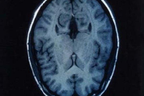 Z informácií získaných pomocou magnetickej rezonancie dokázal počítač povedať, na čo dobrovoľník myslí.