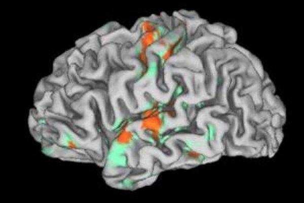 Aktivácia ľavej mozgovej hemisféry D. S. počas dotykovej stimulácie dlane transplantovanej pravej ruky.