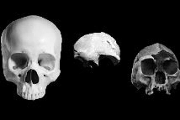 """Porovnanie lebiek normálneho Homo sapiens (vľavo), drobného človeka z Palau (v strede) a """"hobbita"""" z ostrova Flores (vpravo)."""