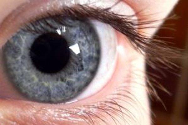 Ľudské oko mohlo fungovať aj lepšie.