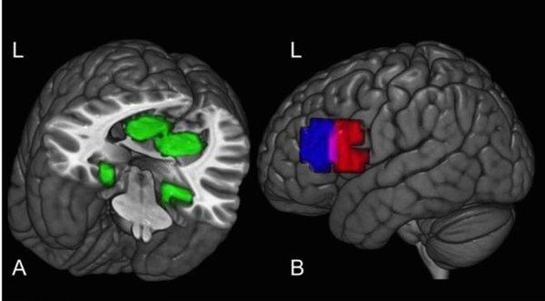 brainmapping2_res.jpg