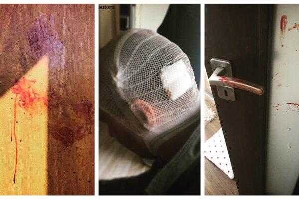 Krvavé následky útoku nepríčetného Petra.
