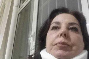 Talianska investigatívna novinárka Maria Grazia Mazzola po útoku mafiánsky Monicy Laery vo februári 2018.