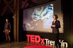 Mladý pes, Tedx