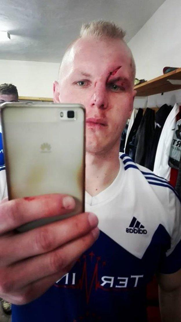 Tomáš Víglaský si kožu roztrhol až po lebku.