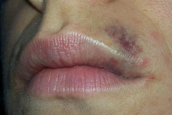 Takto vyzerala tvár mladej ženy pár dní po incidente na parkovisku.