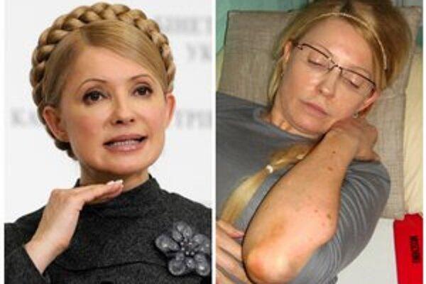 Tymošenková ukázala podliatiny.