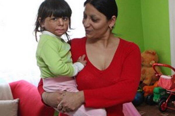 Natálka s mamou. Obe utrpeli pri útoku extrémistov popáleniny.