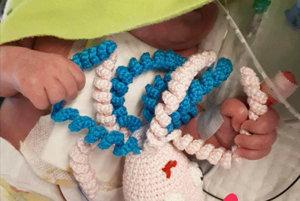 Dieťa uchopí chapadlá chobotničky a nevytŕha si potom hadičky. Účinok hračky je však aj iný.