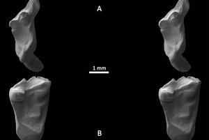 Zuby pod elektrónovým mikroskopom.