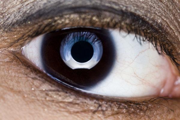 Zrak sa vyvíja aj v dospelosti.