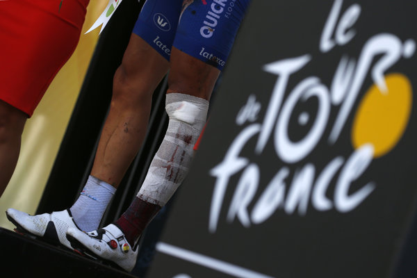 Zranený belgický cyklista Philippe Gilbert končí na Tour de France 2018.