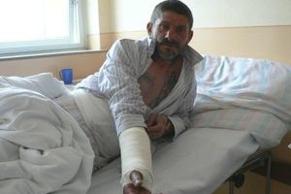 Dolnokubínčana Mira kamarát polial riedidlom a zapálil. Teraz leží v nemocnici so stredne ťažkými popáleninami brucha a ruky.