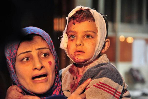 Sýrska mama s dieťaťom po útoku Islamského štátu.