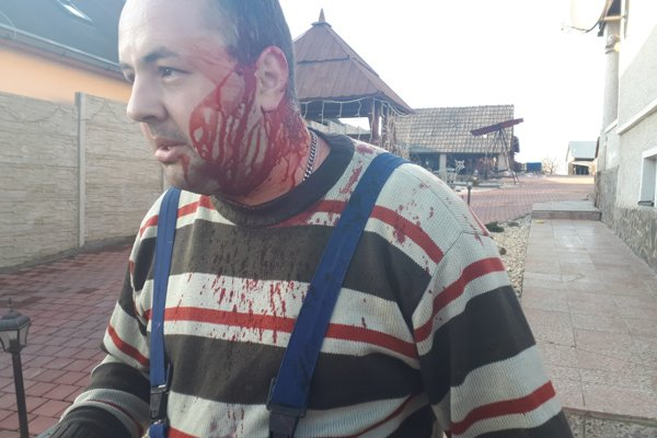 Mladší z Kadukovcov utŕžil ranu na boku hlavy, útok opätoval kontajnerom.