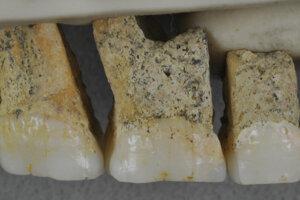 Horné zuby jedinca nového druhu Homo luzonensis. Zľava sú dva črenové zuby a tri stoličky.