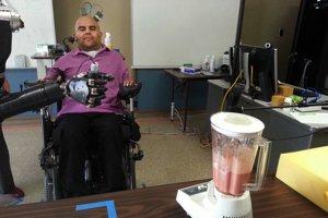 Erik Sorto a jeho robotická ruka.