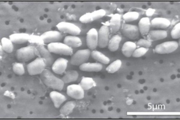 Baktéria GFAJ-1 začlenila arzén do svojho metabolizmu.