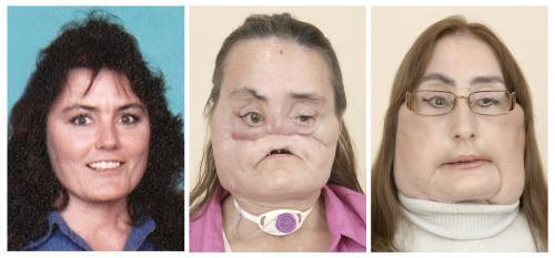 transplantacia-tvare_reuters.jpg