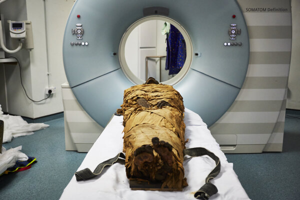 Múmia pripravená na skenovanie pomocou počítačovej tomografie.